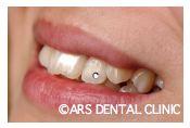 歯のジュエリー 名古屋 審美歯科