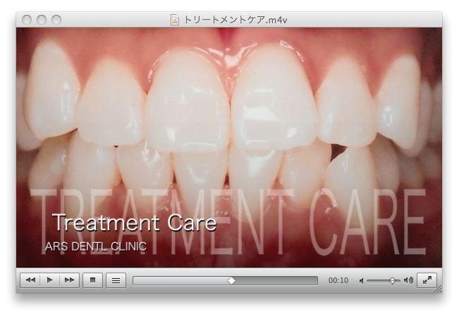 歯のトリートメントケア 名古屋 アルスデンタルクリニック 審美歯科